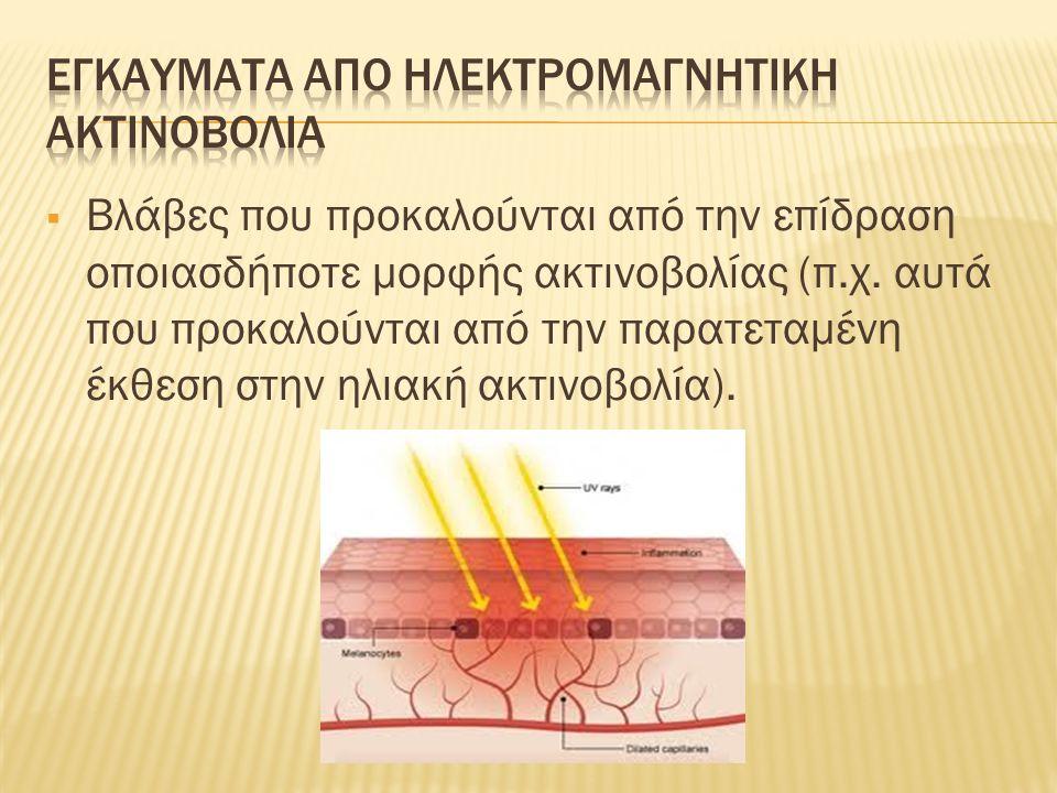 Εγκαυματα απο ηλεκτρομαγνητικη ακτινοβολια