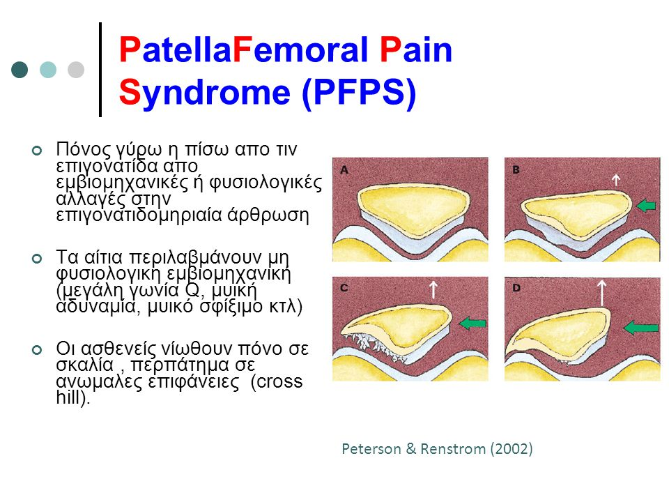 PatellaFemoral Pain Syndrome (PFPS)