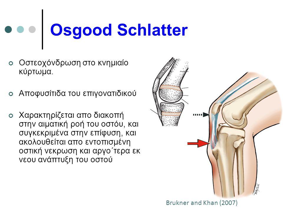 Osgood Schlatter Οστεοχόνδρωση στο κνημιαίο κύρτωμα.