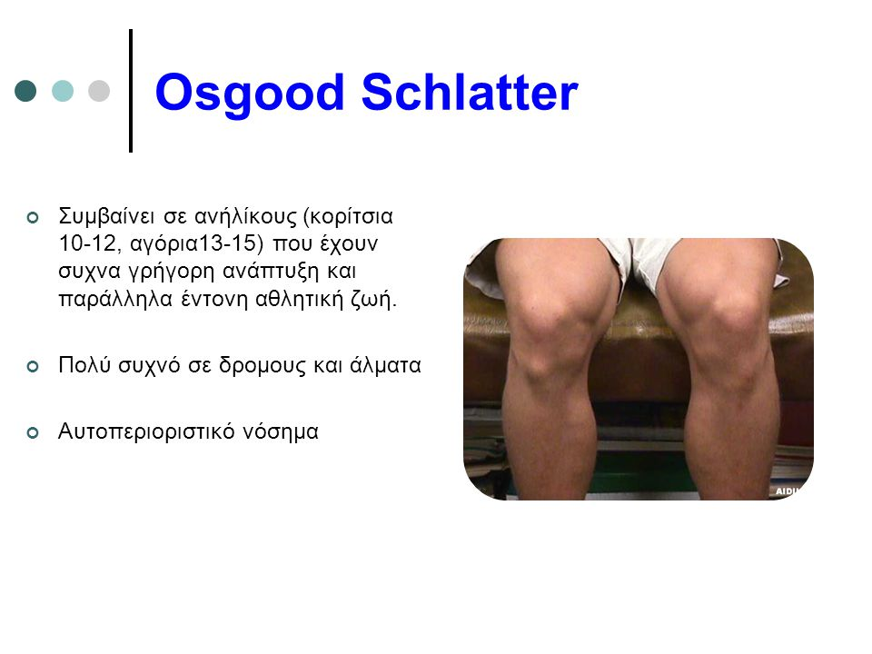Osgood Schlatter Συμβαίνει σε ανήλίκους (κορίτσια 10-12, αγόρια13-15) που έχουν συχνα γρήγορη ανάπτυξη και παράλληλα έντονη αθλητική ζωή.