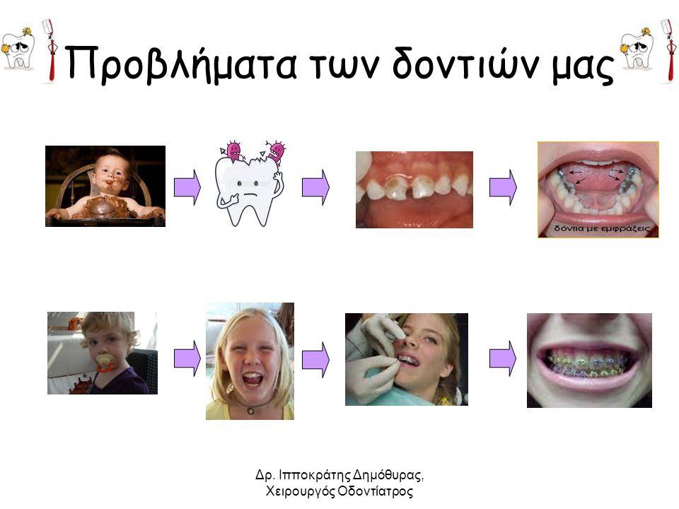 Προβλήματα των δοντιών μας