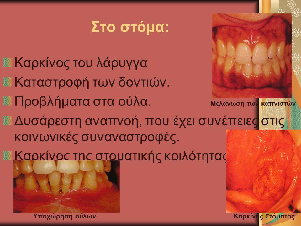 Στο στόμα: Καρκίνος του λάρυγγα Καταστροφή των δοντιών.