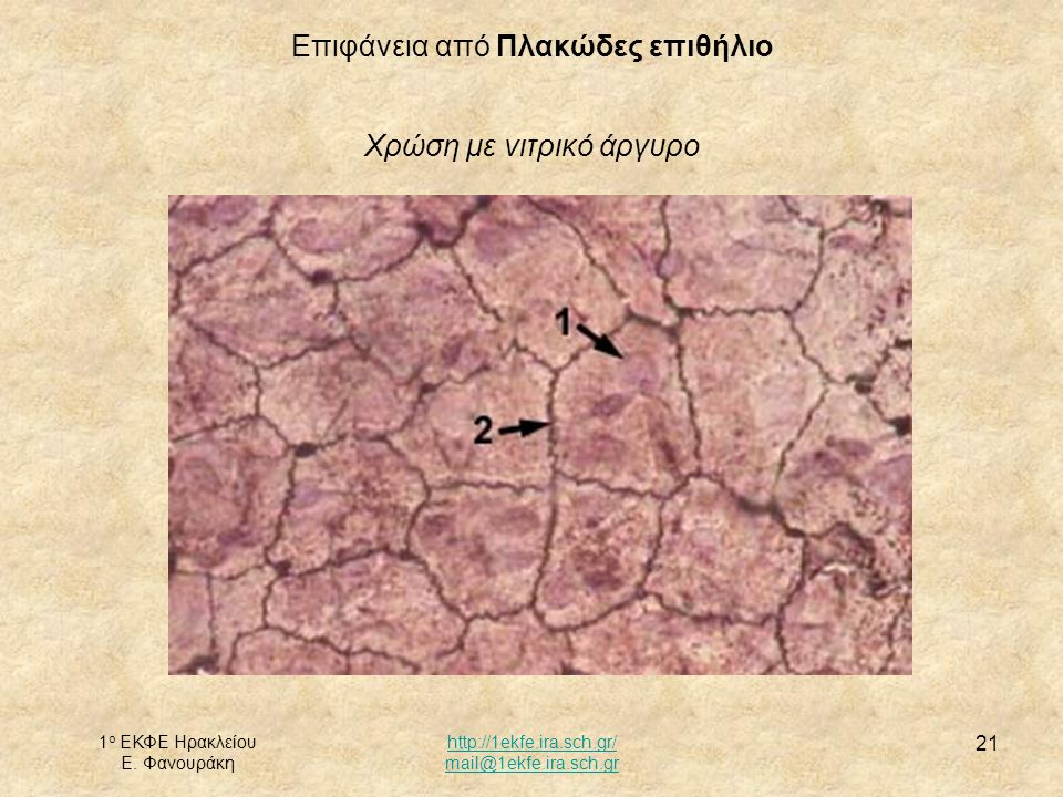 Επιφάνεια από Πλακώδες επιθήλιο Χρώση με νιτρικό άργυρο