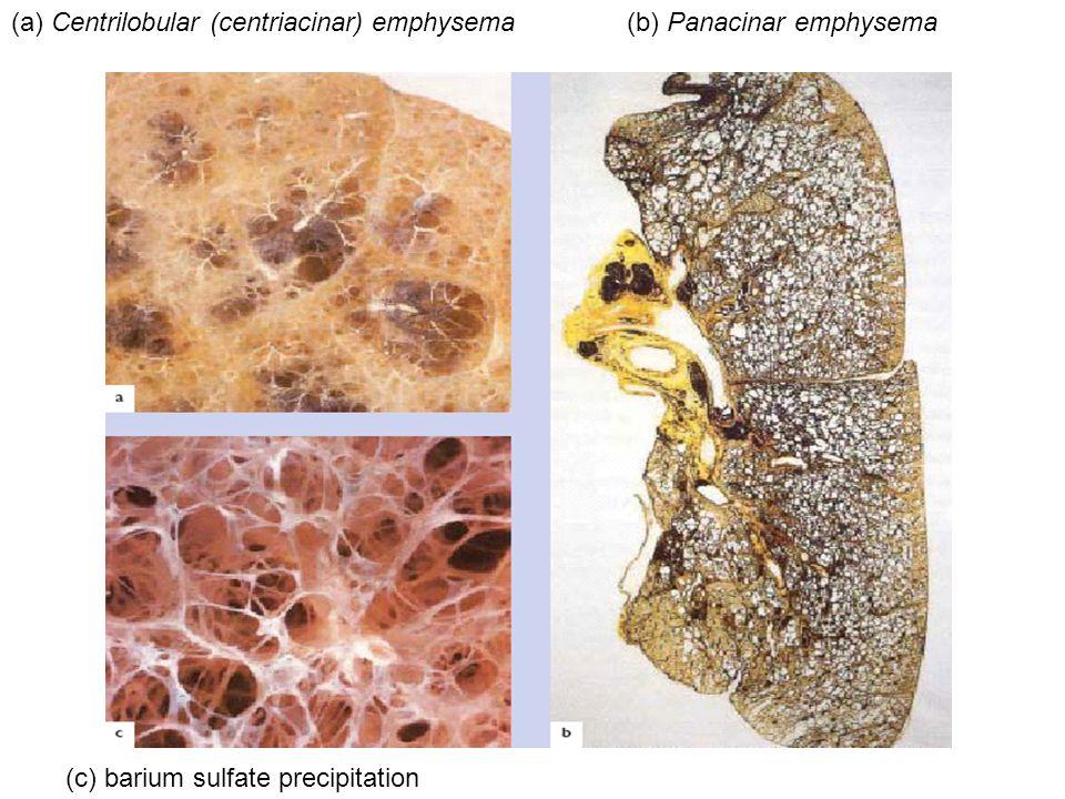 (a) Centrilobular (centriacinar) emphysema