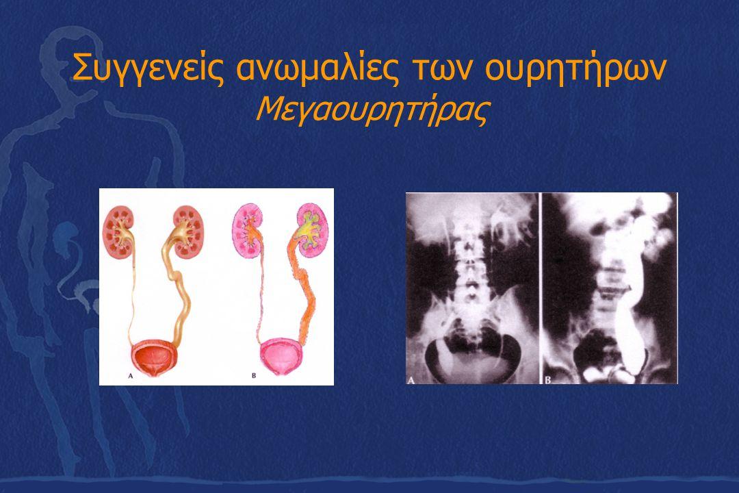Συγγενείς ανωμαλίες των ουρητήρων Μεγαουρητήρας