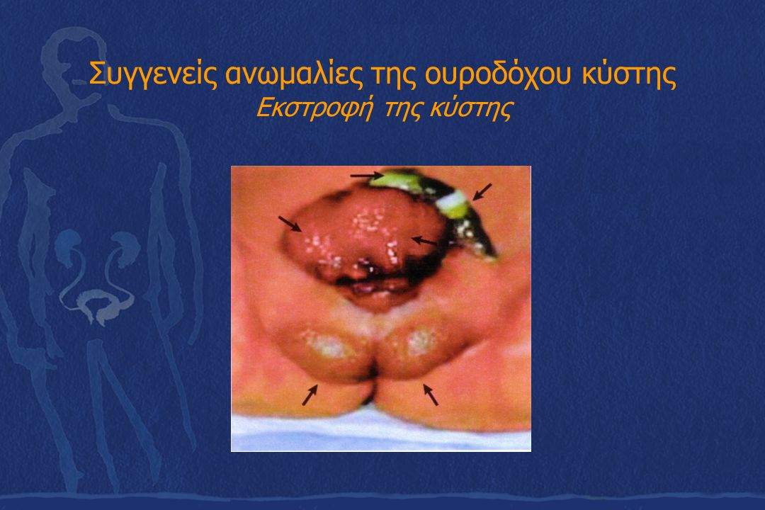 Συγγενείς ανωμαλίες της ουροδόχου κύστης Εκστροφή της κύστης