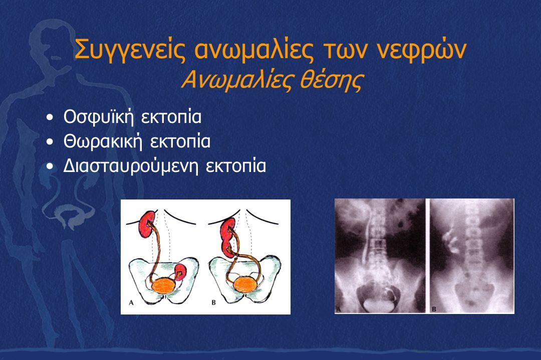 Συγγενείς ανωμαλίες των νεφρών Ανωμαλίες θέσης