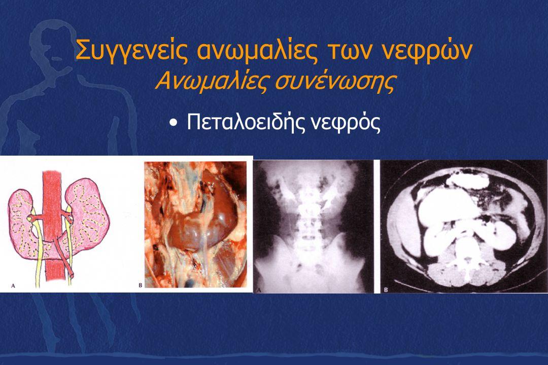 Συγγενείς ανωμαλίες των νεφρών Ανωμαλίες συνένωσης