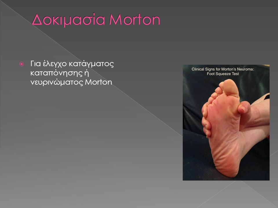 Δοκιμασία Morton Για έλεγχο κατάγματος καταπόνησης ή νευρινώματος Morton