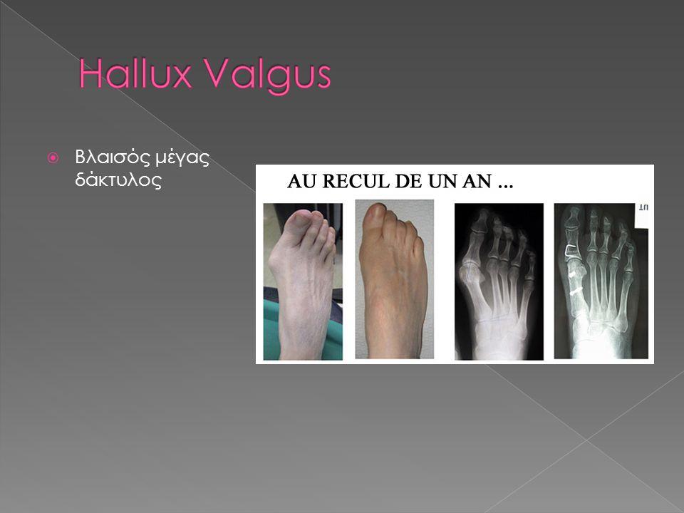 Hallux Valgus Βλαισός μέγας δάκτυλος