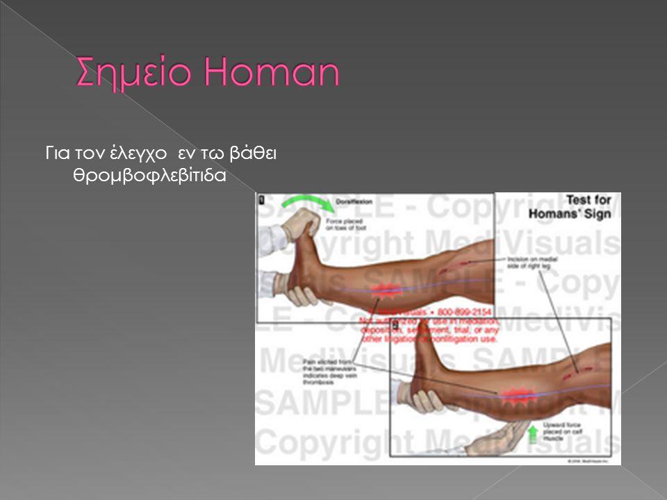 Σημείο Homan Για τον έλεγχο εν τω βάθει θρομβοφλεβίτιδα