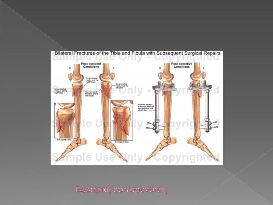 Εξωτερική οστεοσύνθεση