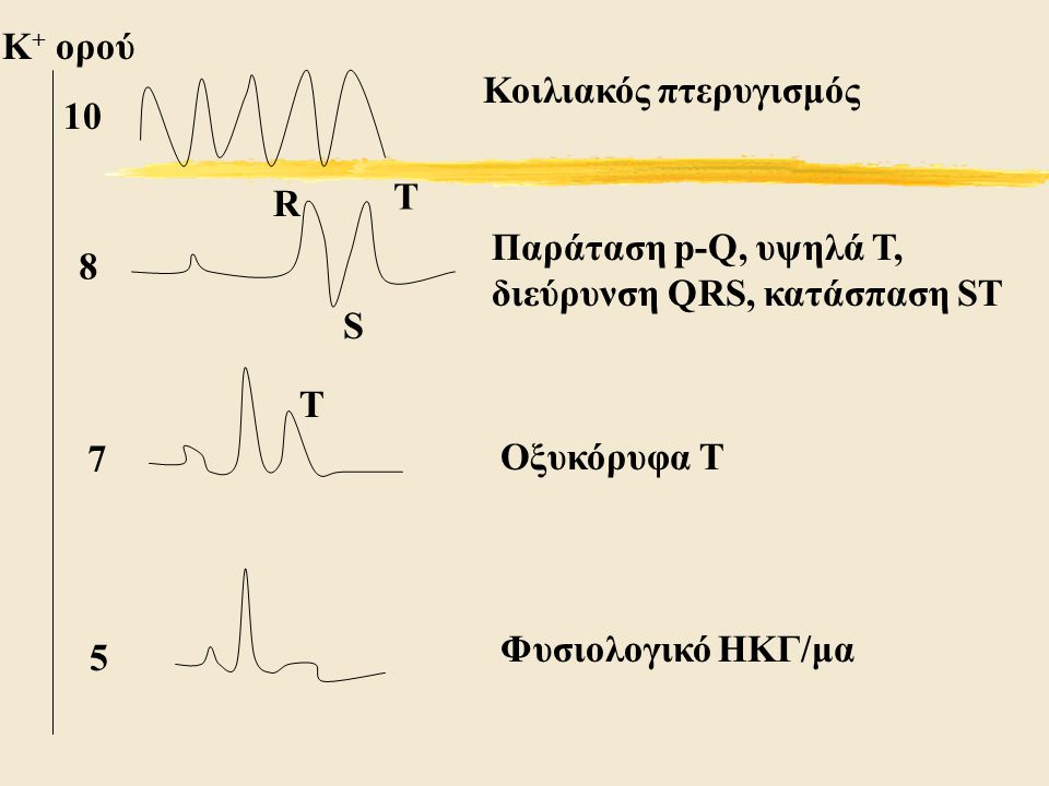 K+ ορού Κοιλιακός πτερυγισμός. 10. Τ. R. Παράταση p-Q, υψηλά Τ, διεύρυνση QRS, κατάσπαση ST. 8.