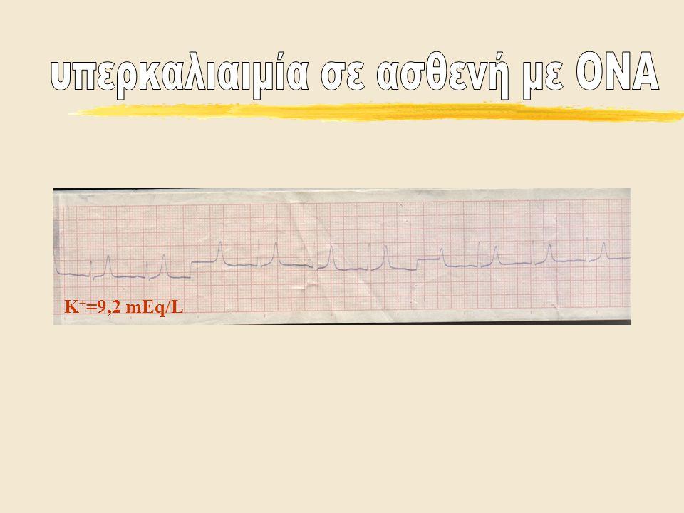 υπερκαλιαιμία σε ασθενή με ΟΝΑ