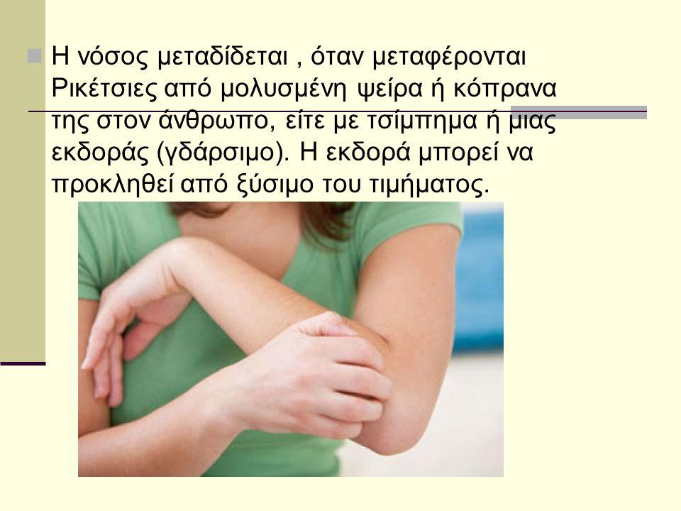 Η νόσος μεταδίδεται , όταν μεταφέρονται Ρικέτσιες από μολυσμένη ψείρα ή κόπρανα της στον άνθρωπο, είτε με τσίμπημα ή μιας εκδοράς (γδάρσιμο).