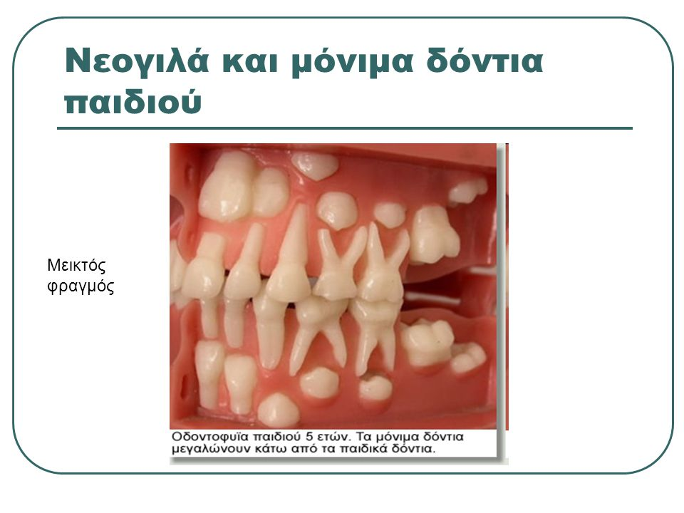 Νεογιλά και μόνιμα δόντια παιδιού
