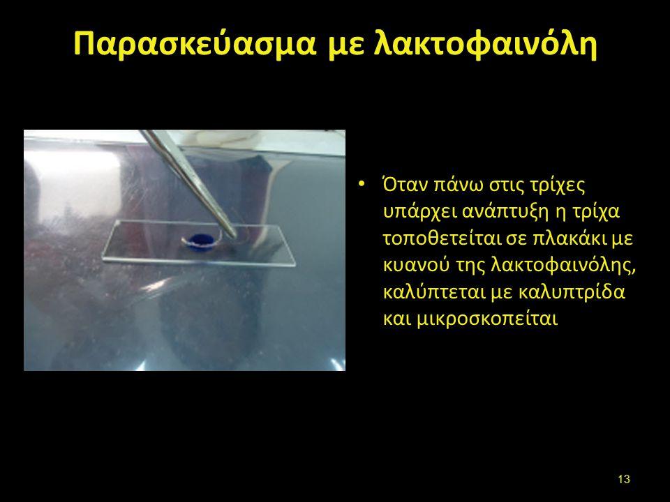 Κάλυψη και μικροσκόπιση