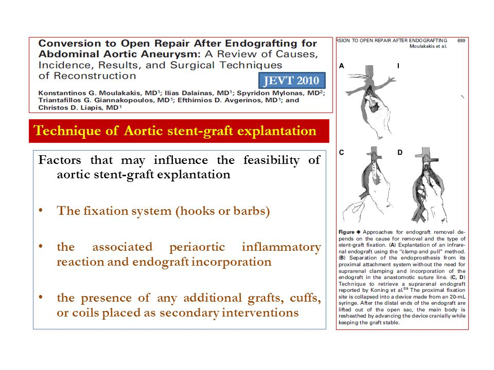 Technique of Aortic stent-graft explantation