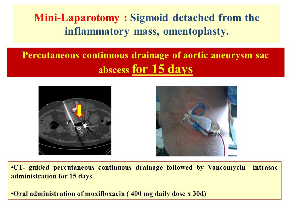 Mini-Laparotomy : Sigmoid detached from the inflammatory mass, omentoplasty.