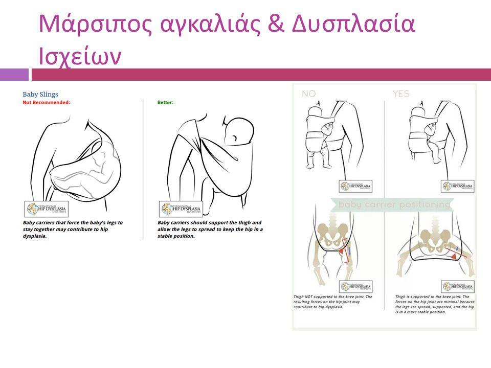 Μάρσιπος αγκαλιάς & Δυσπλασία Ισχείων