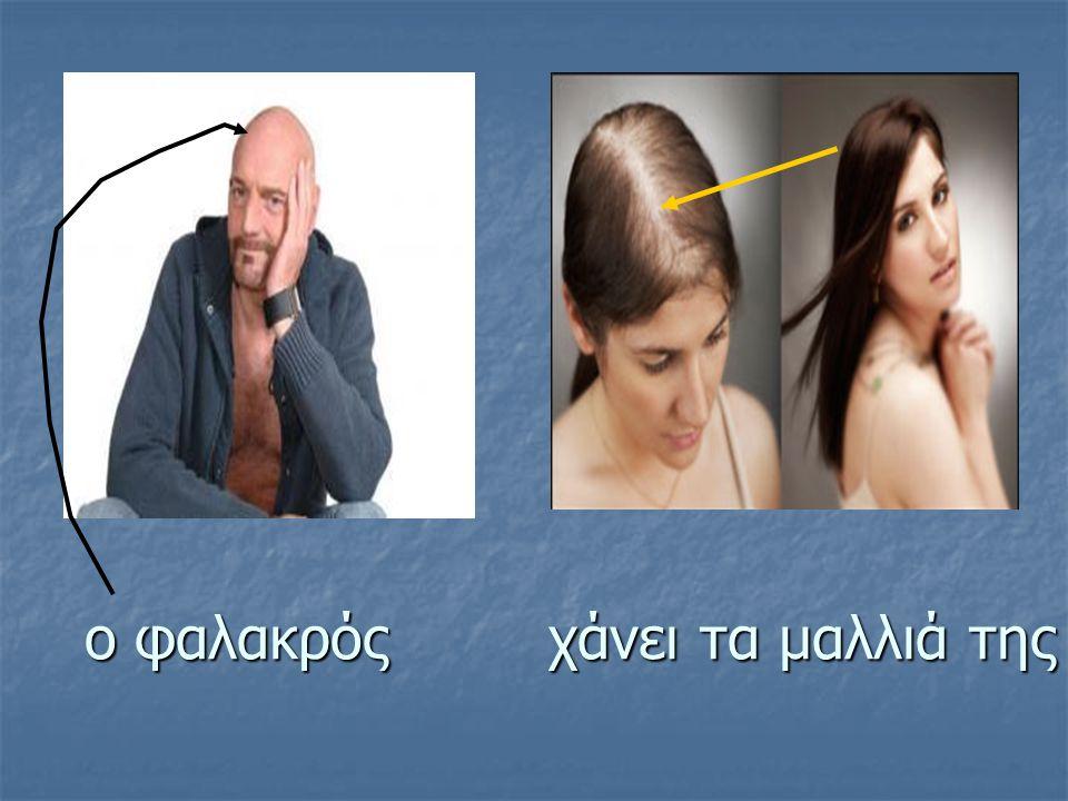 ο φαλακρός χάνει τα μαλλιά της