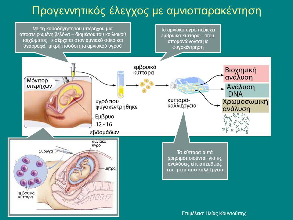 Προγεννητικός έλεγχος με αμνιοπαρακέντηση