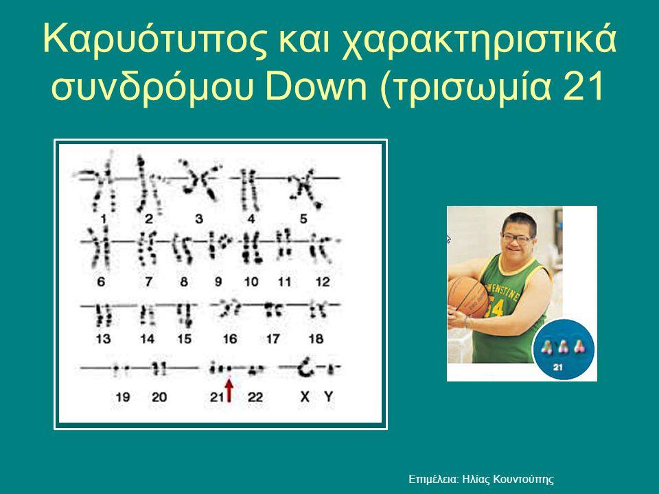 Καρυότυπος και χαρακτηριστικά συνδρόμου Down (τρισωμία 21