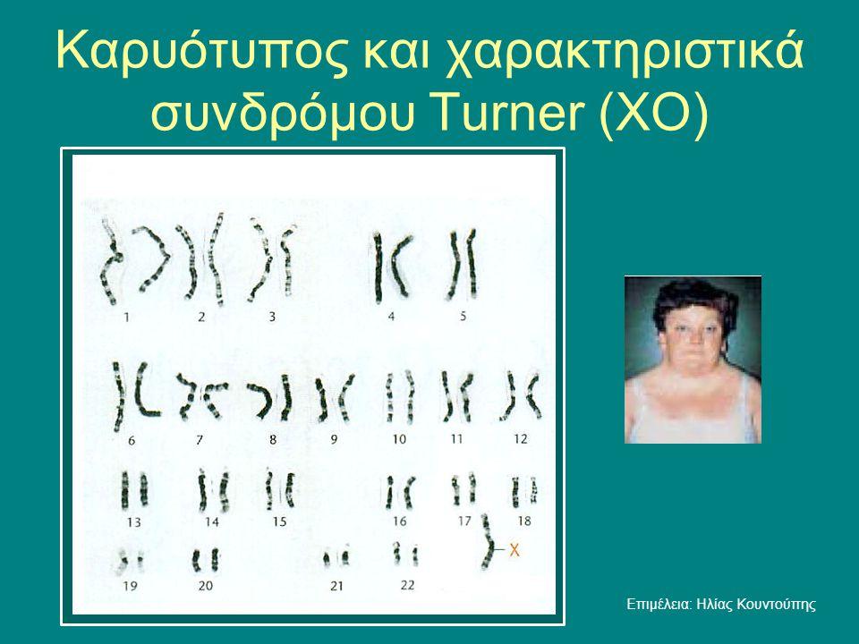Καρυότυπος και χαρακτηριστικά συνδρόμου Τurner (ΧO)