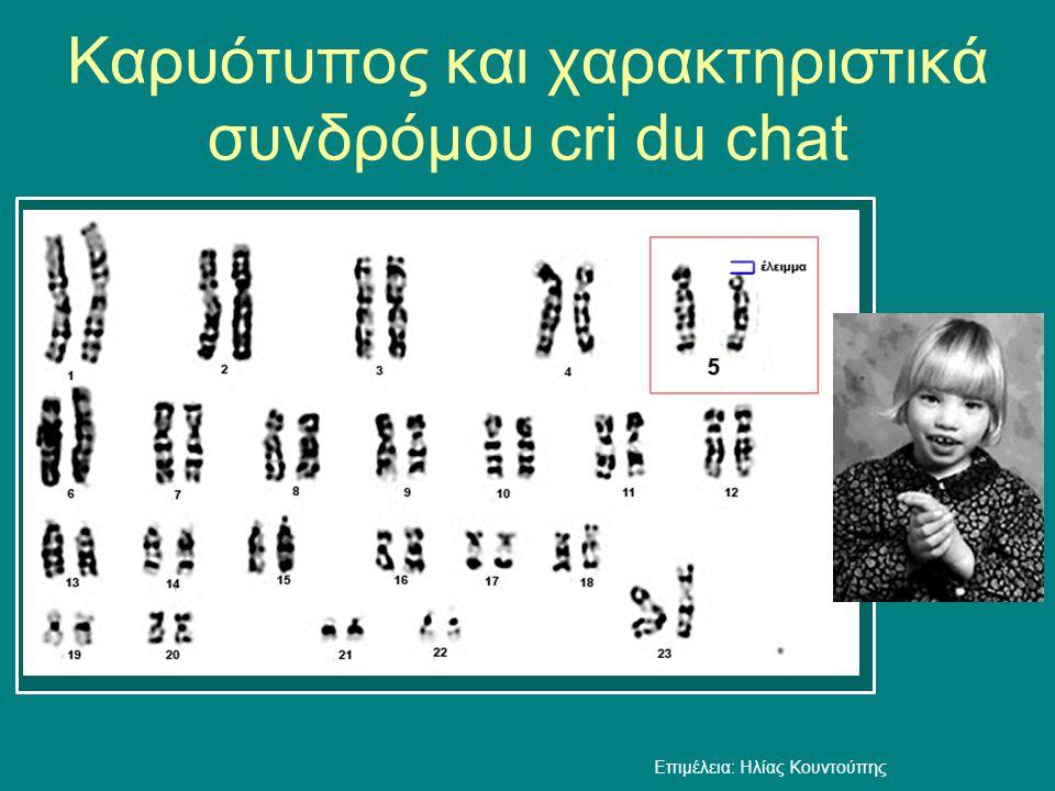 Καρυότυπος και χαρακτηριστικά συνδρόμου cri du chat