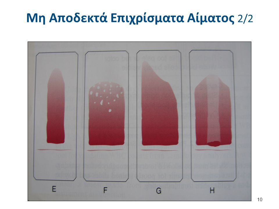 Μέγεθος σταγόνας Μεγάλη σταγόνα Χαμηλός HCT Μικρή σταγόνα Υψηλός HCT