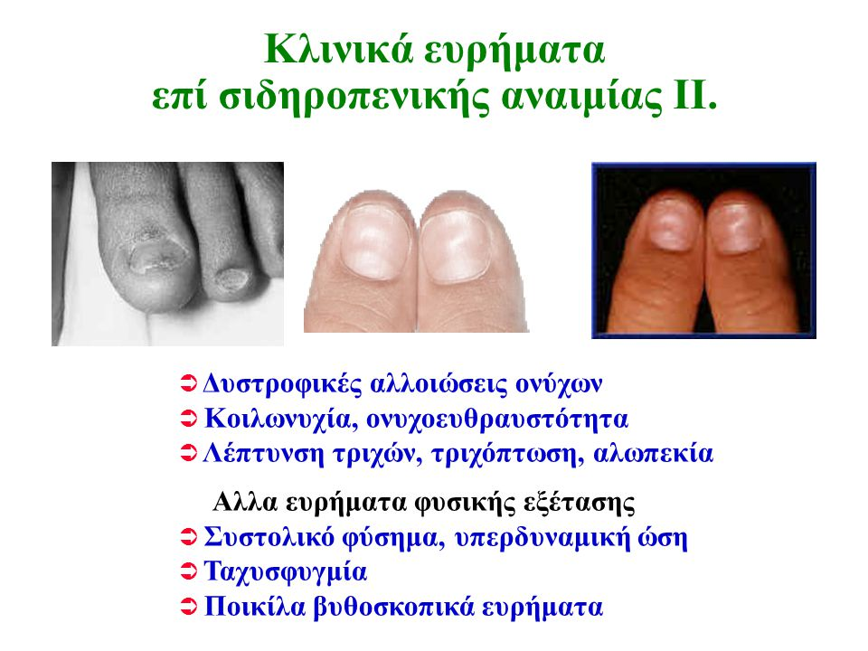 Κλινικά ευρήματα επί σιδηροπενικής αναιμίας ΙΙ.