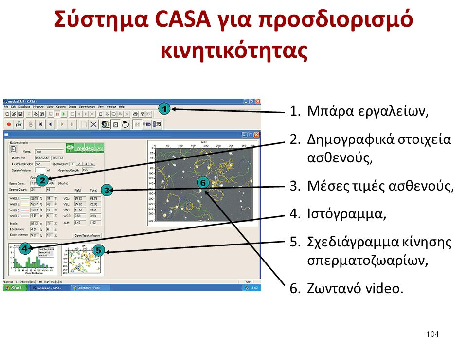 Ιστόγραμμα κατανομής μέτρησης σπερματοζωαρίων