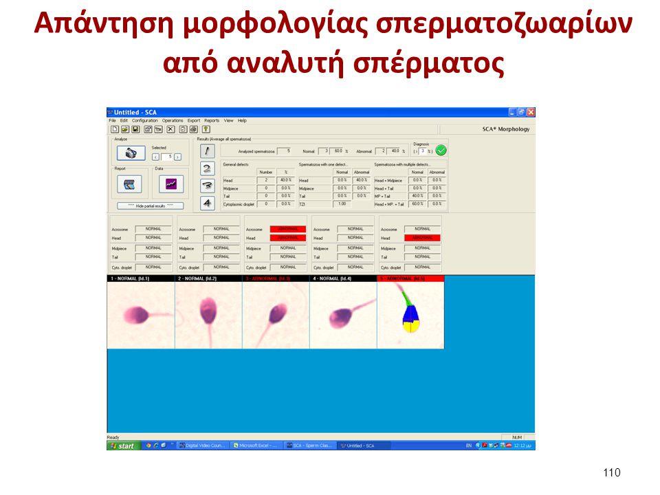 Aπάντηση εξέτασης σπέρματος από CASA