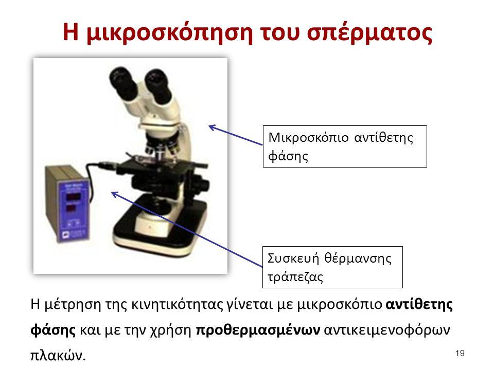 H κινητικότητα των σπερματοζωαρίων παλιά οδηγία του ΠΟΥ