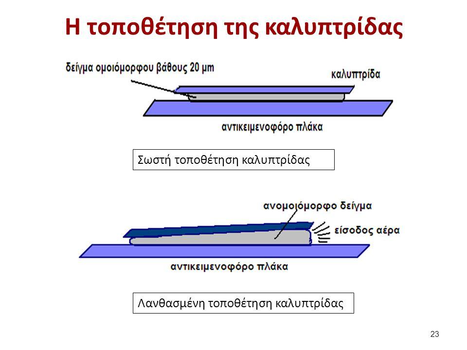 H κίνηση των σπερματοζωαρίων