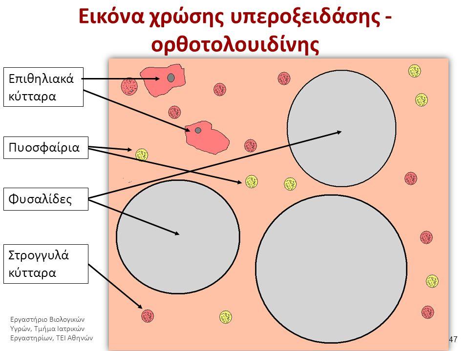 Προσδιορισμός μορφολογίας σπερματοζωαρίων