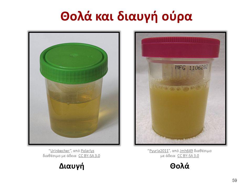Περιπτώσεις εμφάνισης θολερότητας (1 από 2)