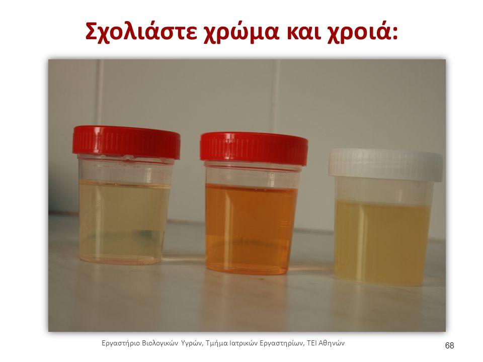 pH (αντίδραση ή οξύτητα των ούρων)