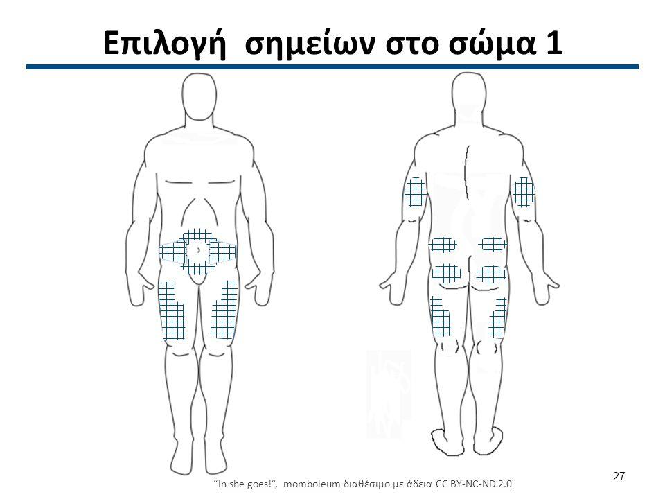 Επιλογή σημείων στο σώμα 2