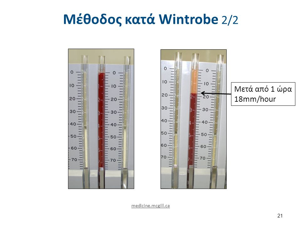 Αποτέλεσμα με τη Μέθοδος Wintrobe