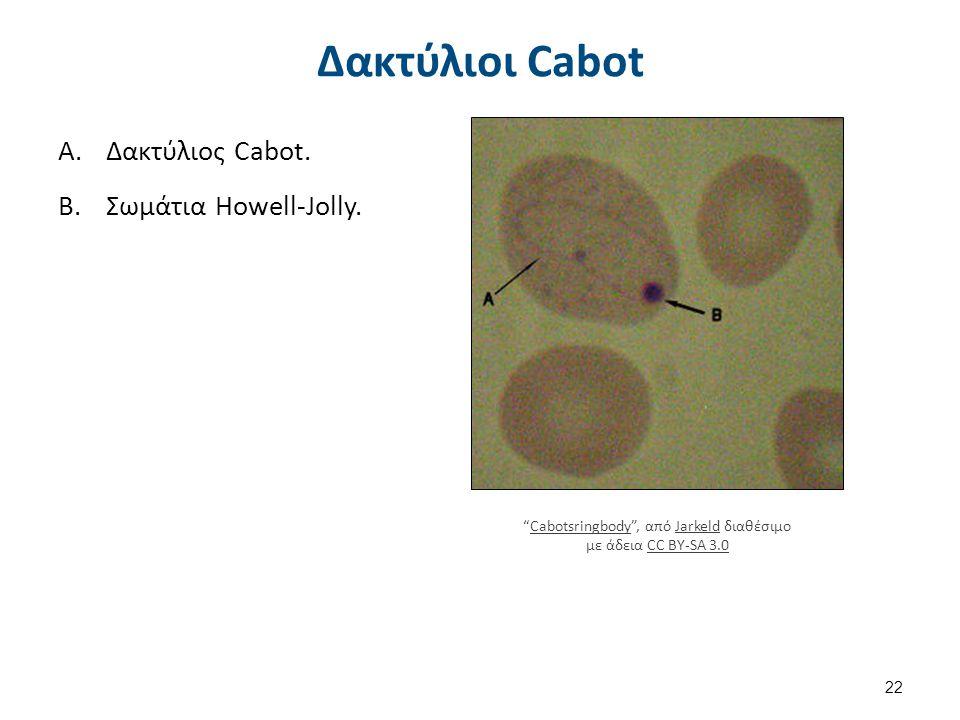 Μυελός των οστών Σχέση κοκκιώδους σειράς και ερυθράς ΦΤ.