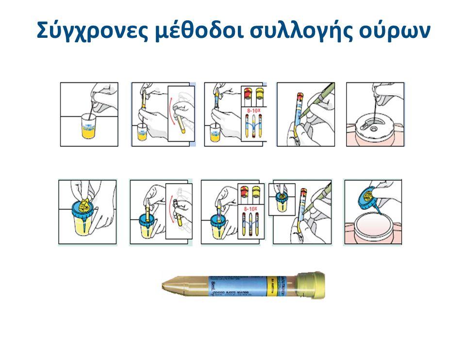 Τα μικροσκόπια στη γενική εξέταση ούρων