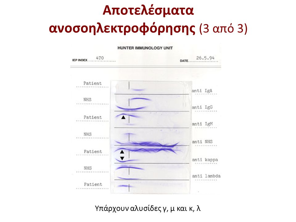 Υπάρχουν αλυσίδες γ, μ και κ, λ