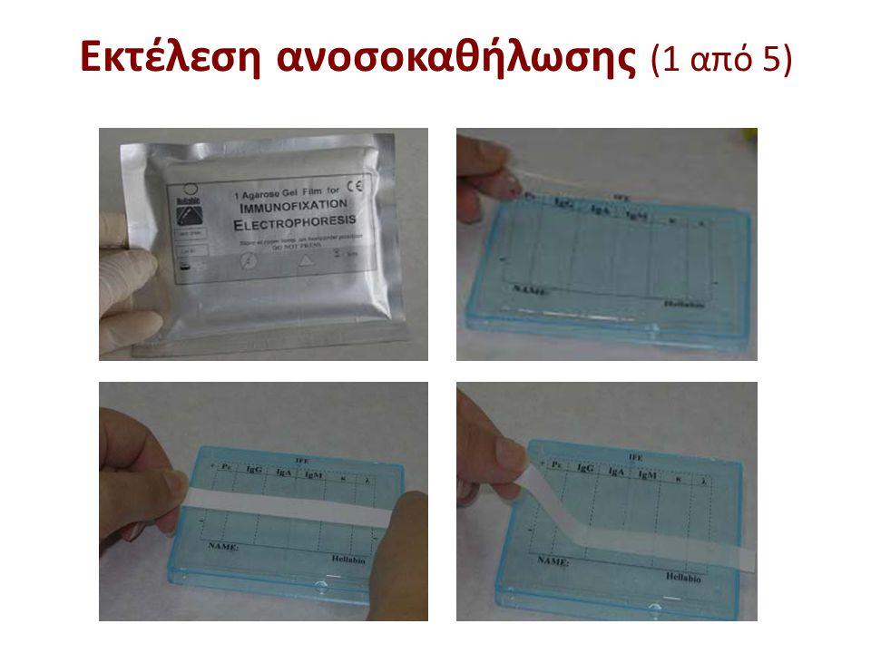 Εκτέλεση ανοσοκαθήλωσης (2 από 5)