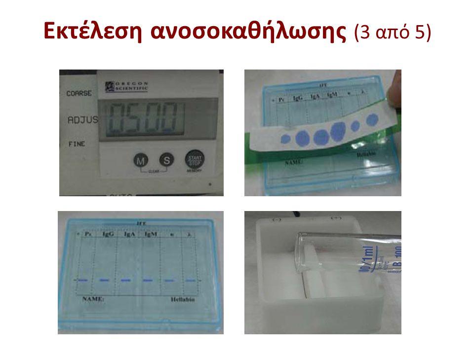 Εκτέλεση ανοσοκαθήλωσης (4 από 5)