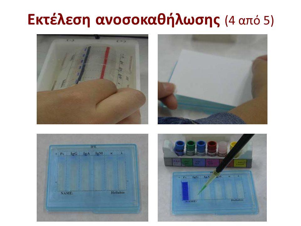 Εκτέλεση ανοσοκαθήλωσης (5 από 5)