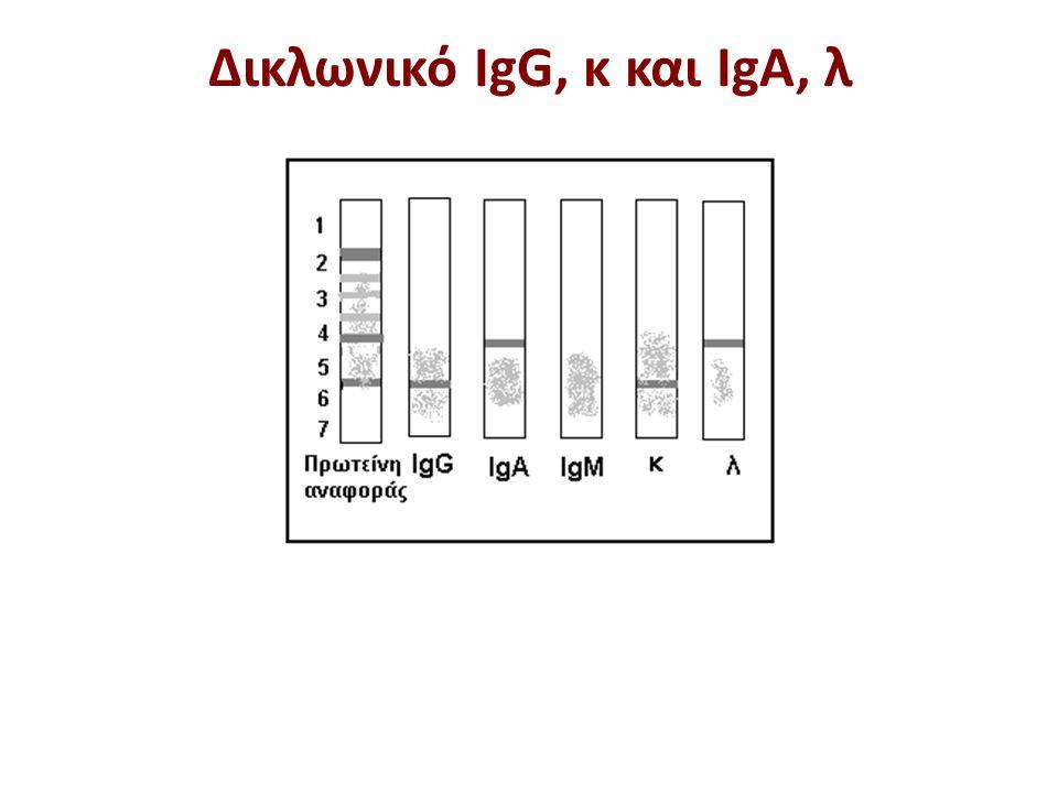 Δικλωνικό IgG, λ Μη ειδική δέσμευση IgM
