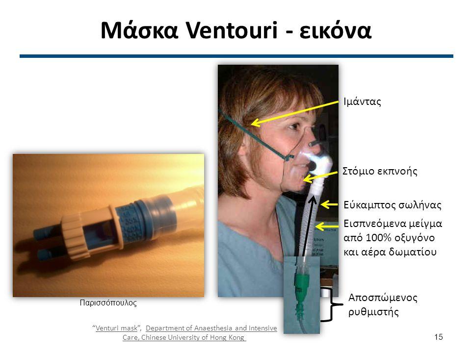 Παραδοχή Bernoulli 30 l/min 2 l/min πηγή οξυγόνου