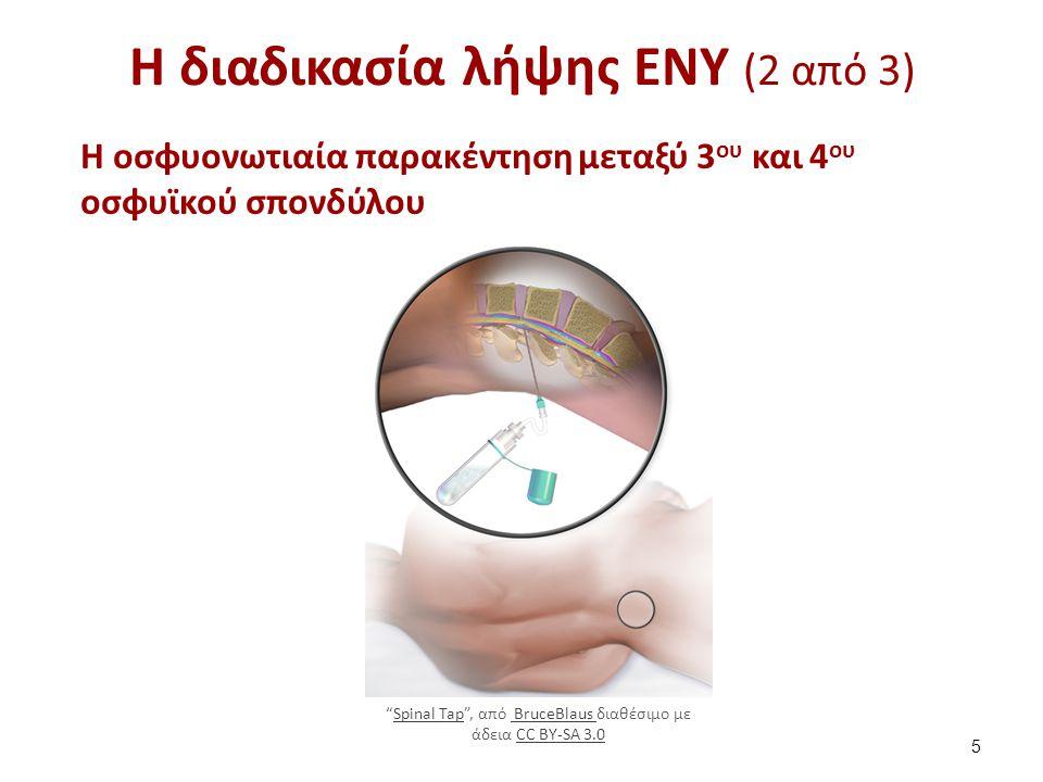Η διαδικασία λήψης ΕΝΥ (3 από 3)