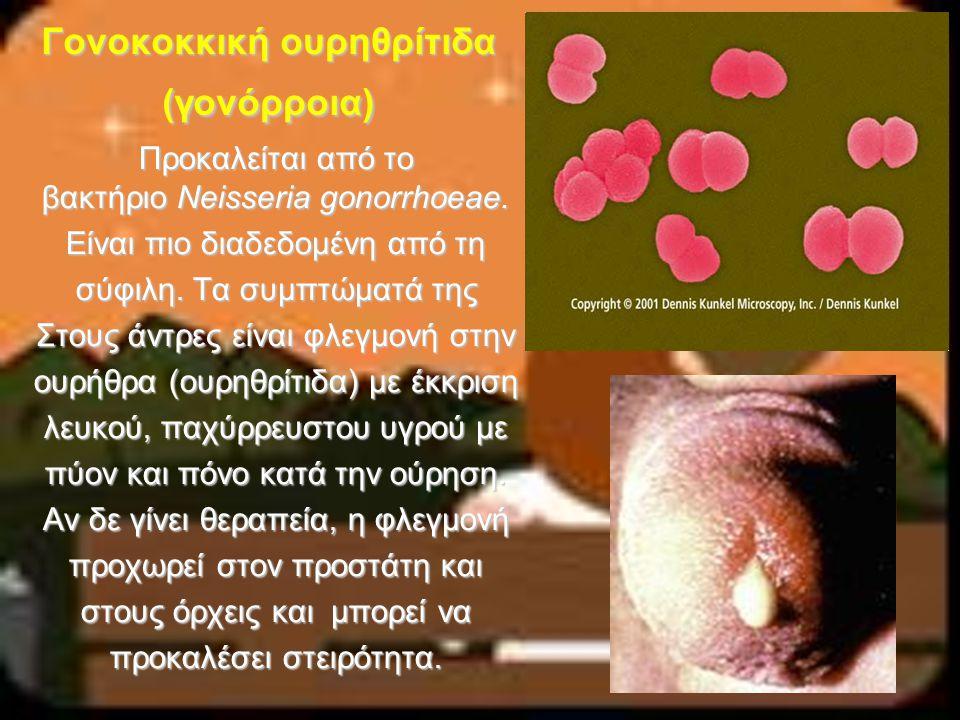 Γονοκοκκική ουρηθρίτιδα (γονόρροια)